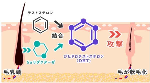 DHT(ジヒドロテストステロン)